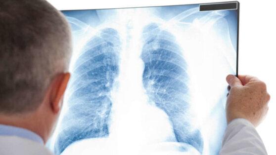 Ученые выявили пугающую особенность в легких погибших от коронавируса