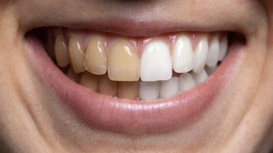 Учёные создали пептидный лак для защиты зубов от кариеса
