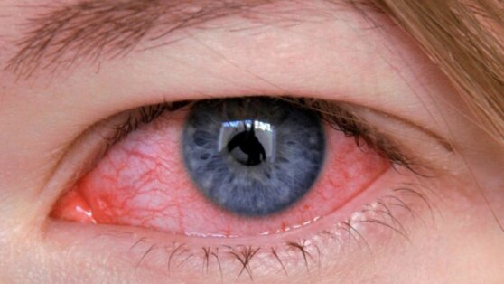 Медики предупредили о новом штамме неизлечимого глазного гриппа