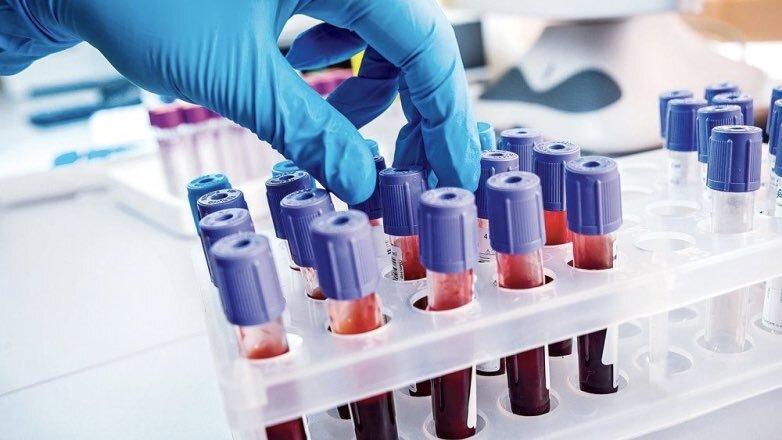 Анализ крови колбы