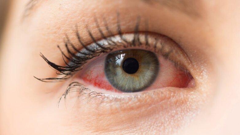 Глаза покраснение красные конъюнктивит
