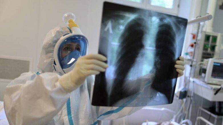 Врач коронавирус палата больница рентгеновский снимок