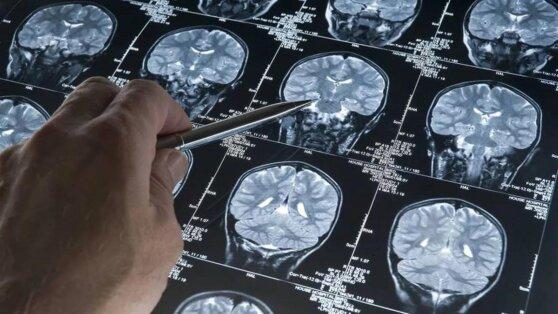 Разработан препарат против смертельной опухоли мозга