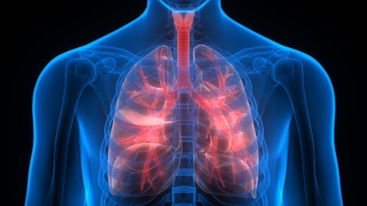 Лёгкие рак лёгких