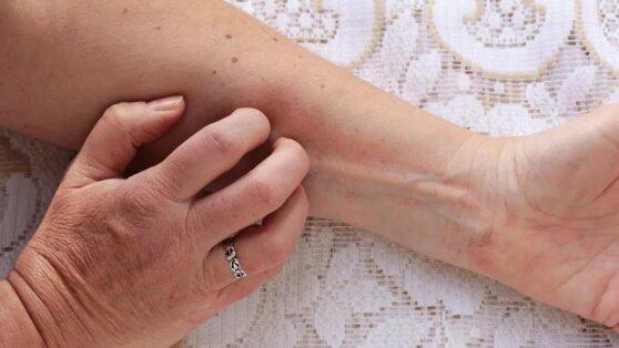В «странностях» на коже увидели первые признаки рака легких