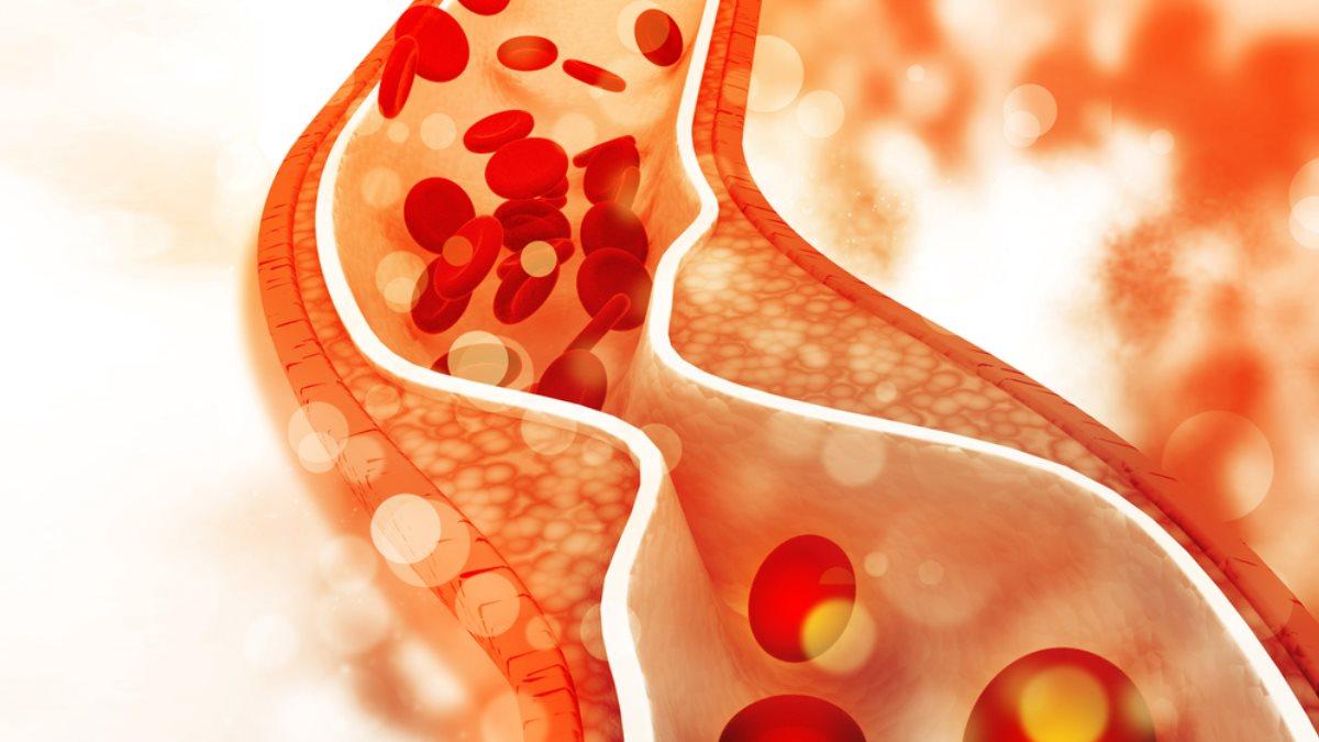 Холестерин вена