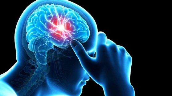 Невролог перечислил причины появления мигрени