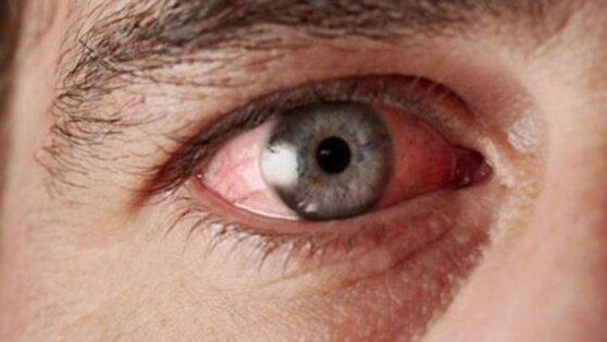 Названы «затаившиеся» в глазах признаки скорого инфаркта
