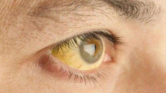 Необычный симптом опаснейшего вида рака нашли в глазах