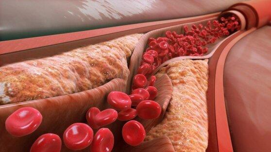 Врачи назвали простое средство от «плохого» холестерина