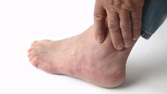 В «странностях» на ногах увидели признак скорого инфаркта