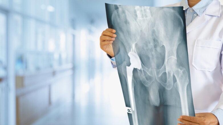 Перелом бедра таза рентген