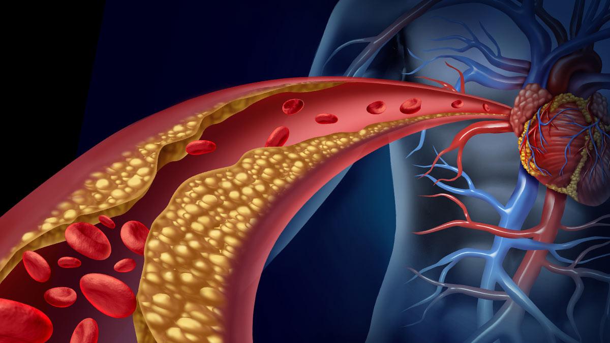Холестерин атеросклероз кровеносная система сосуды артерии