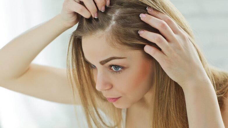 Потеря волос укрепление волосы женщина облысение