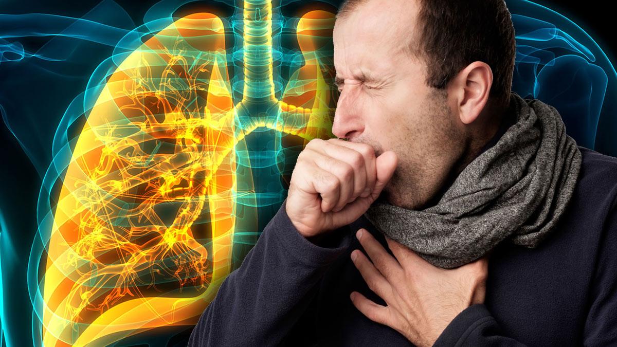 пневмония кашель бронхит воспаление легких