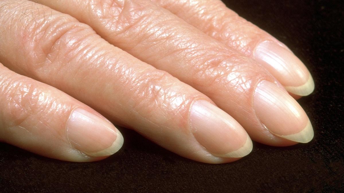 синдром барабанных палочек на пальцах рук