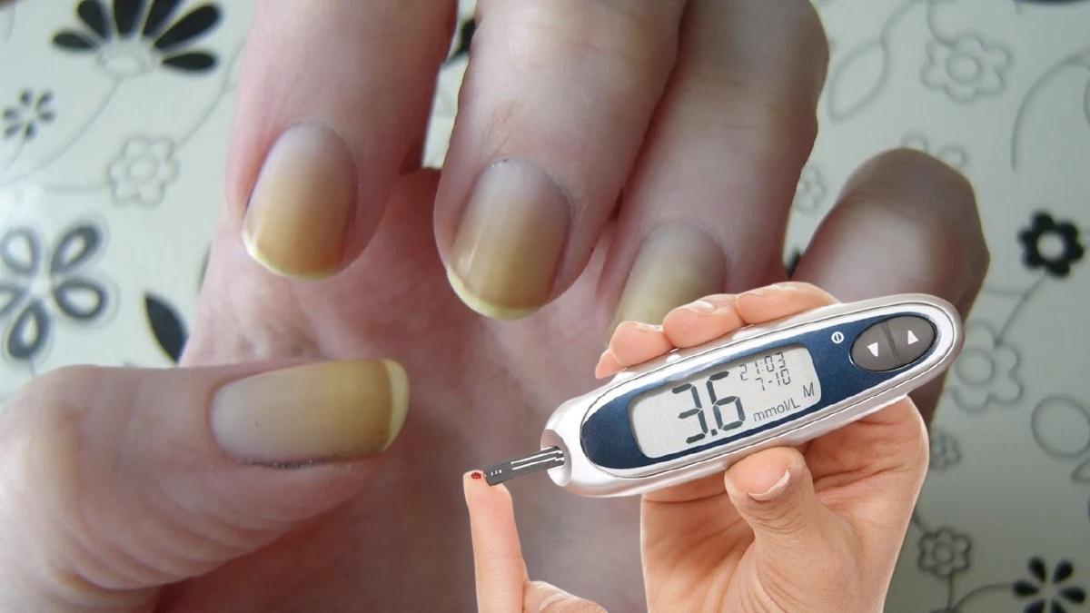 желтые ногти и диабет