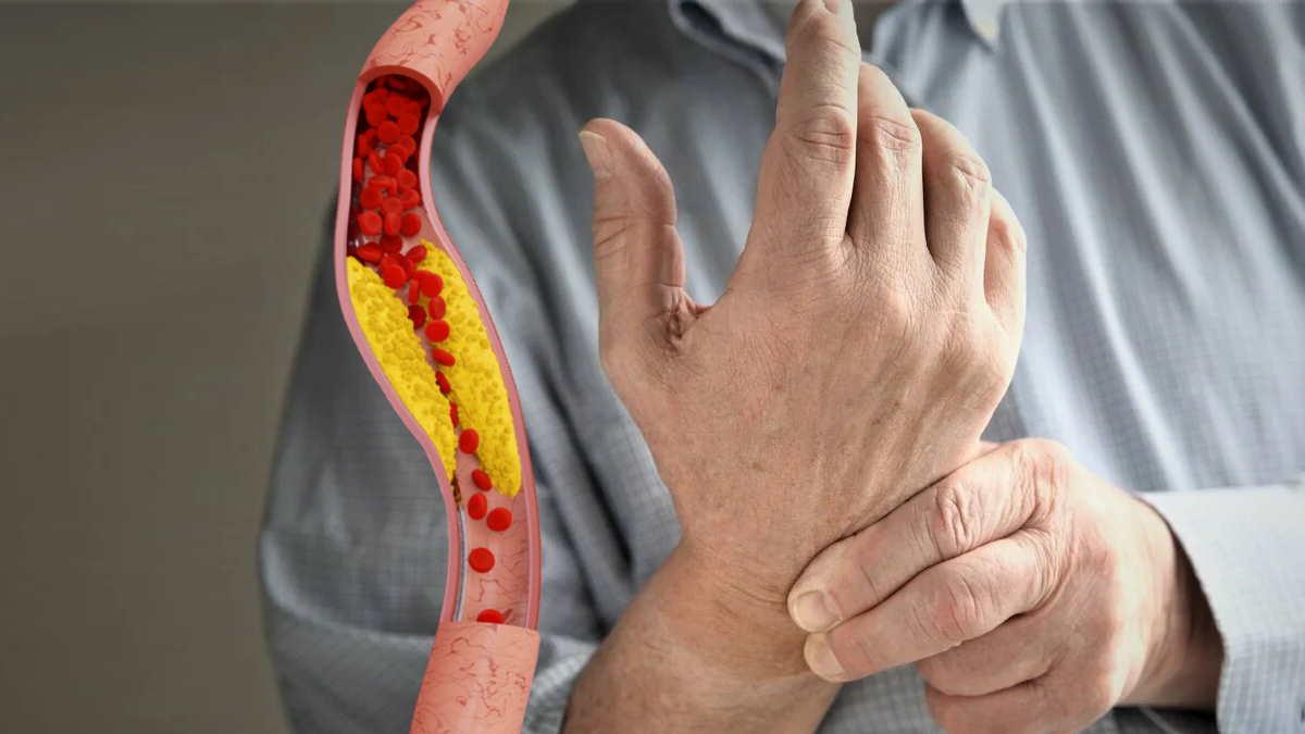 Холестерин рука