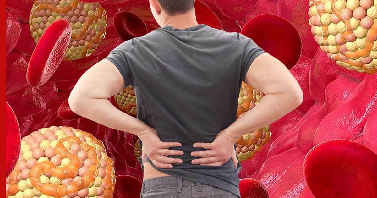 Причины высокого холестерина в крови | Азбука здоровья